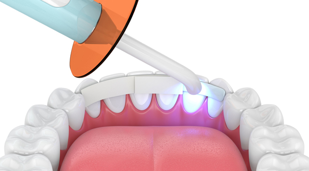 How To Care For Bonded Teeth