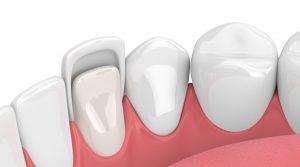 What Exactly Are Dental Veneers