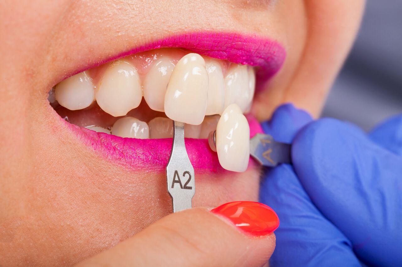 Fusion Dental Care (raleigh, Nc) Veneers