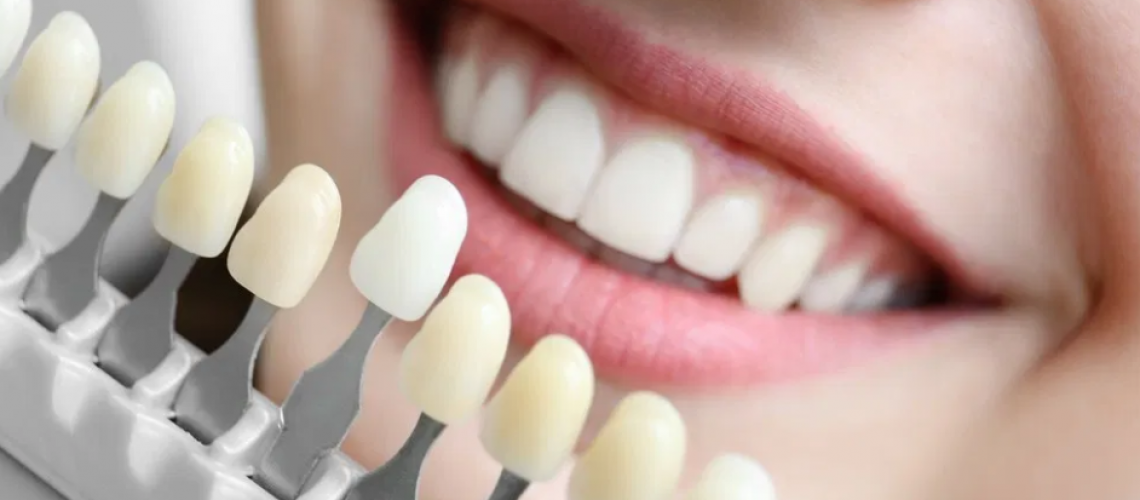 Dental Color, Everything We Need To Know And Its Relationship With Dental Aesthetics
